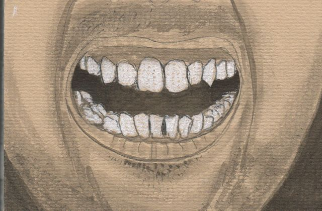 teeth02